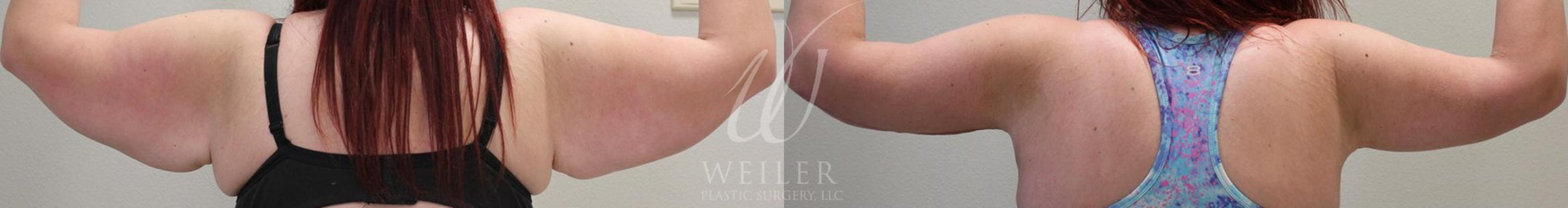Arm Lift Before & After Photo | Baton Rouge, Louisiana | Weiler Plastic Surgery