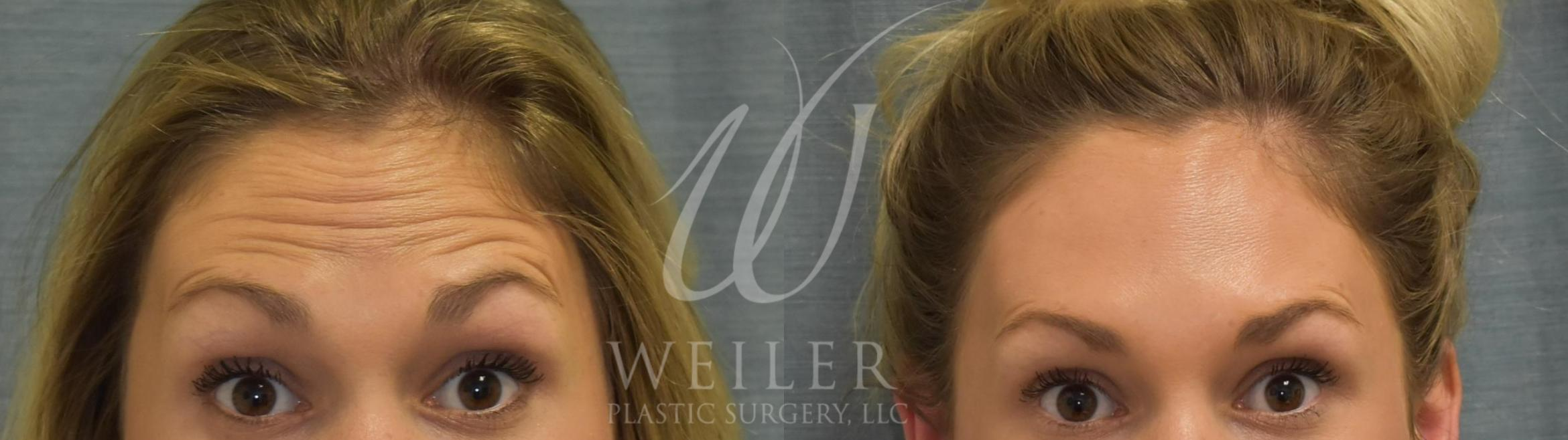 BOTOX® Cosmetic Before & After Photo | Baton Rouge, Louisiana | Weiler Plastic Surgery