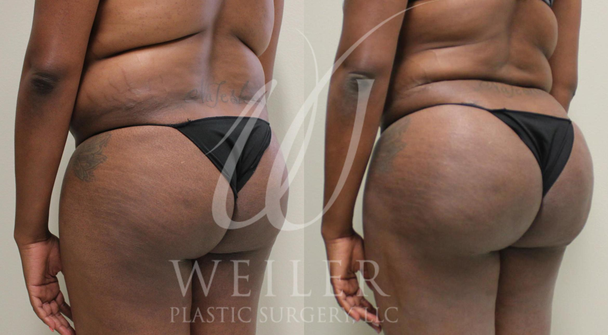 Brazilian Butt Lift Before & After Photo | Baton Rouge, Louisiana | Weiler Plastic Surgery
