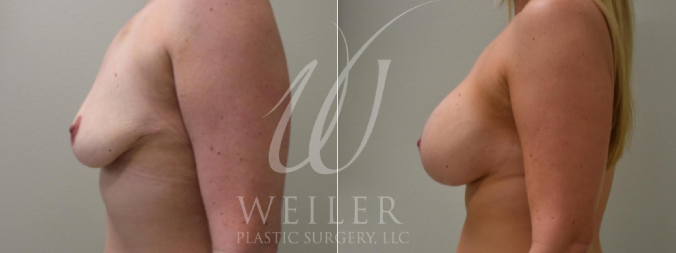 Breast Augmentation Before After Photos Patient 261 Baton