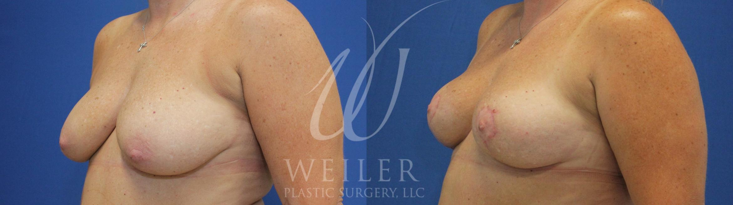 Breast Lift Before & After Photo | Baton Rouge, Louisiana | Weiler Plastic Surgery