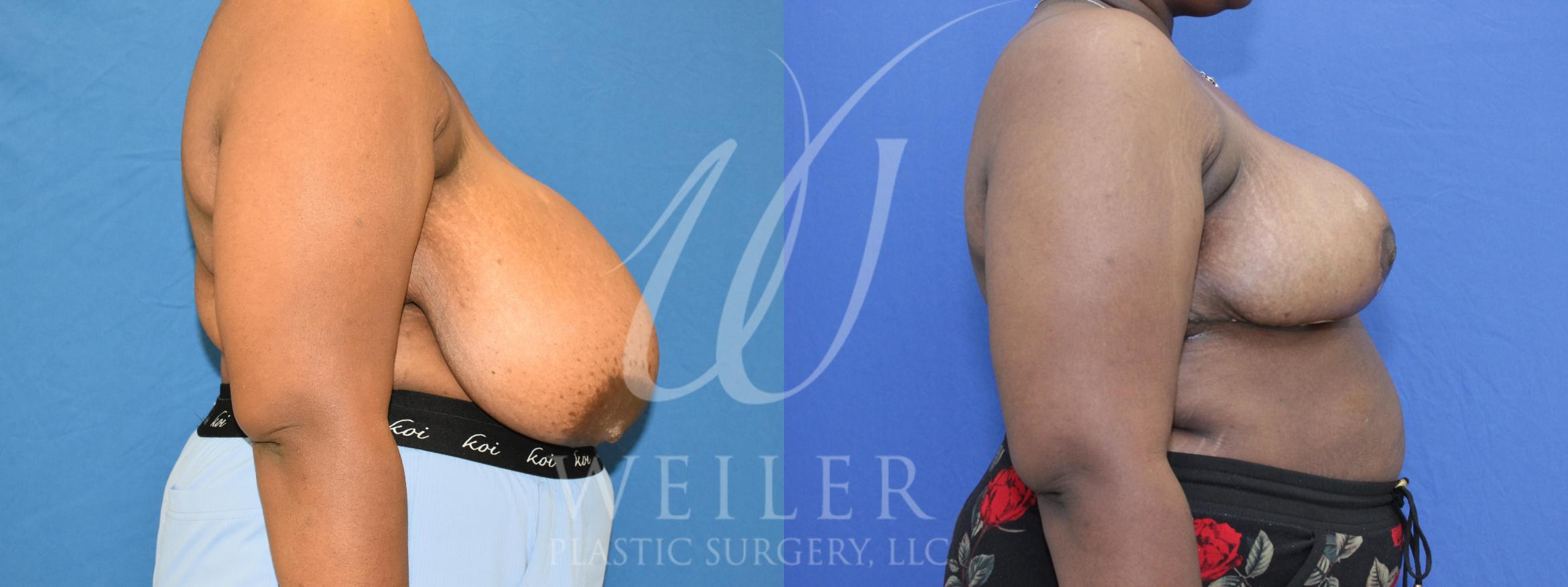 Breast Reduction Before & After Photo | Baton Rouge, Louisiana | Weiler Plastic Surgery