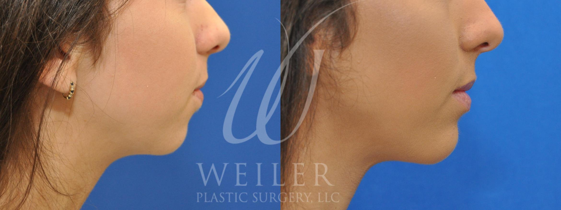 Chin Augmentation Before & After Photo | Baton Rouge, Louisiana | Weiler Plastic Surgery