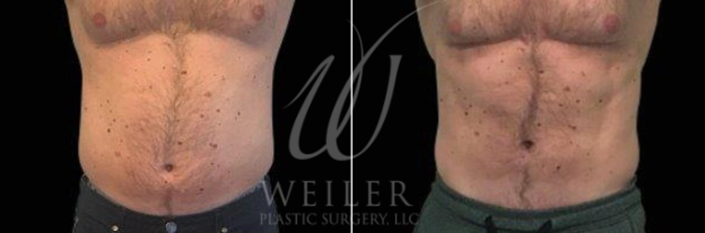 EMSculpt Before & After Photo | Baton Rouge, Louisiana | Weiler Plastic Surgery