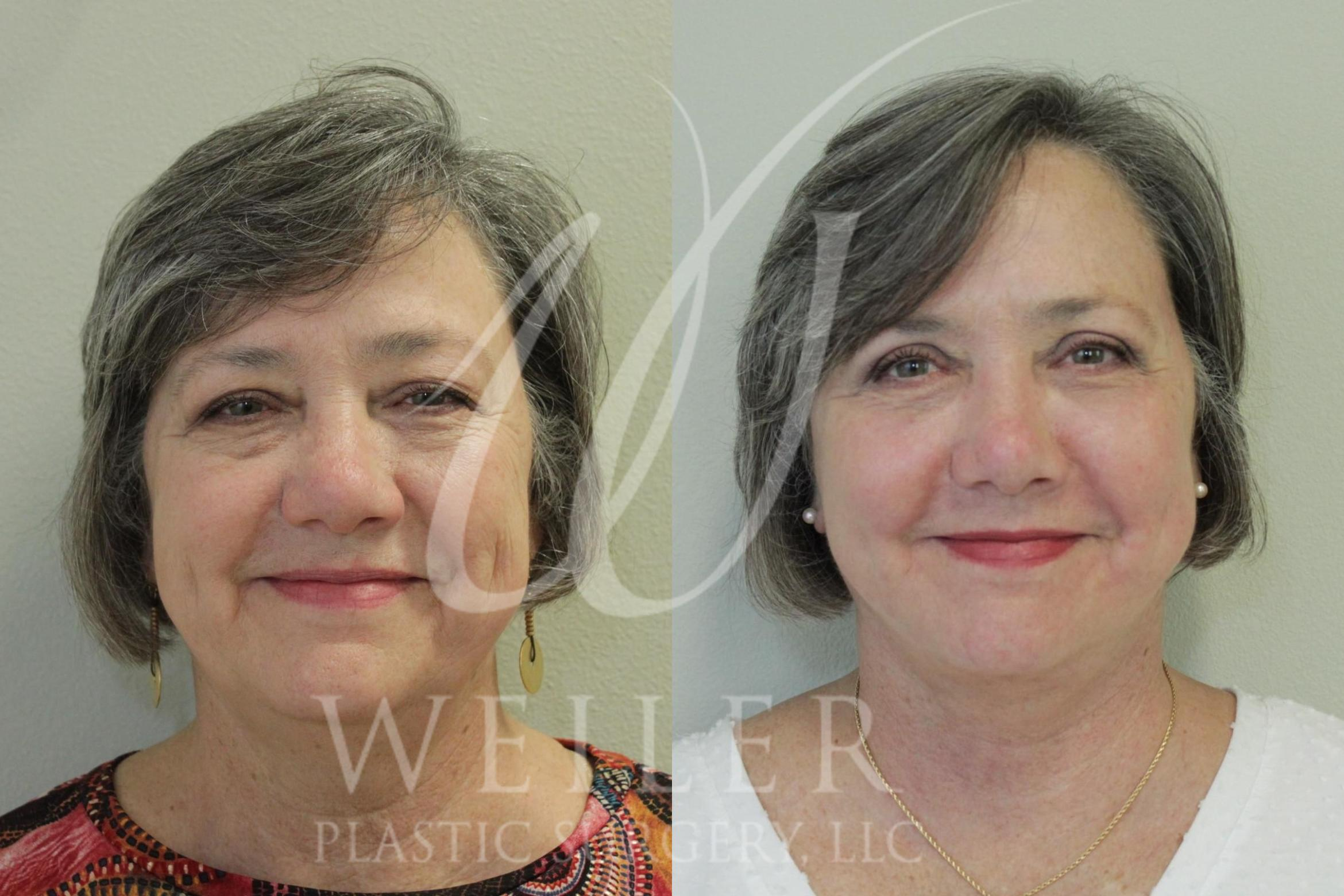 Facelift Before & After Photo | Baton Rouge, Louisiana | Weiler Plastic Surgery