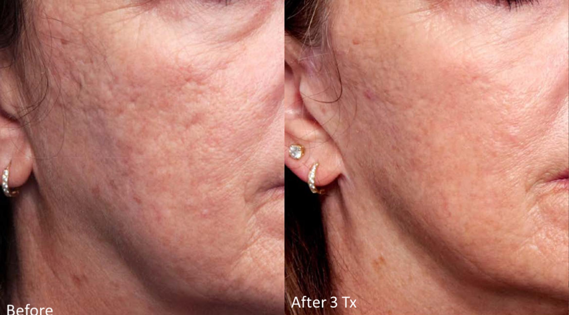 Genius® Microneedling with RF Before & After Photo | Baton Rouge, Louisiana | Weiler Plastic Surgery