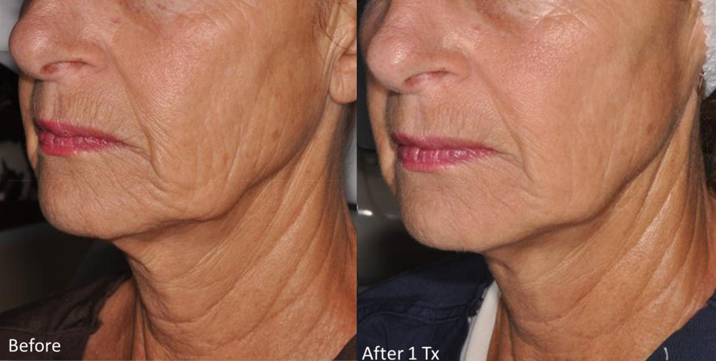 Genius® Microneedling with RF Before & After Photo Gallery