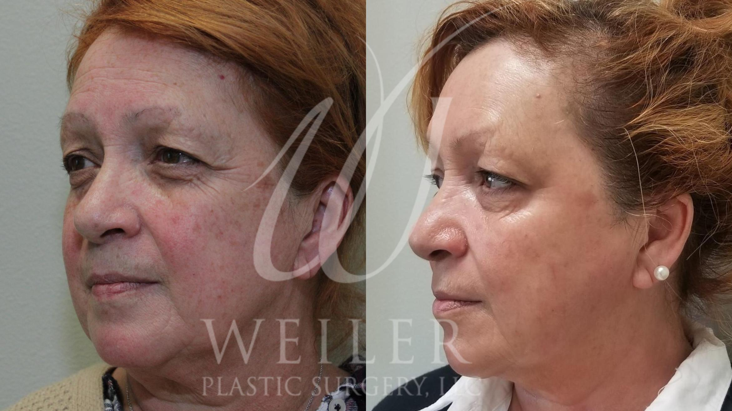 IPL Photorejuvenation Before & After Photo | Baton Rouge, Louisiana | Weiler Plastic Surgery