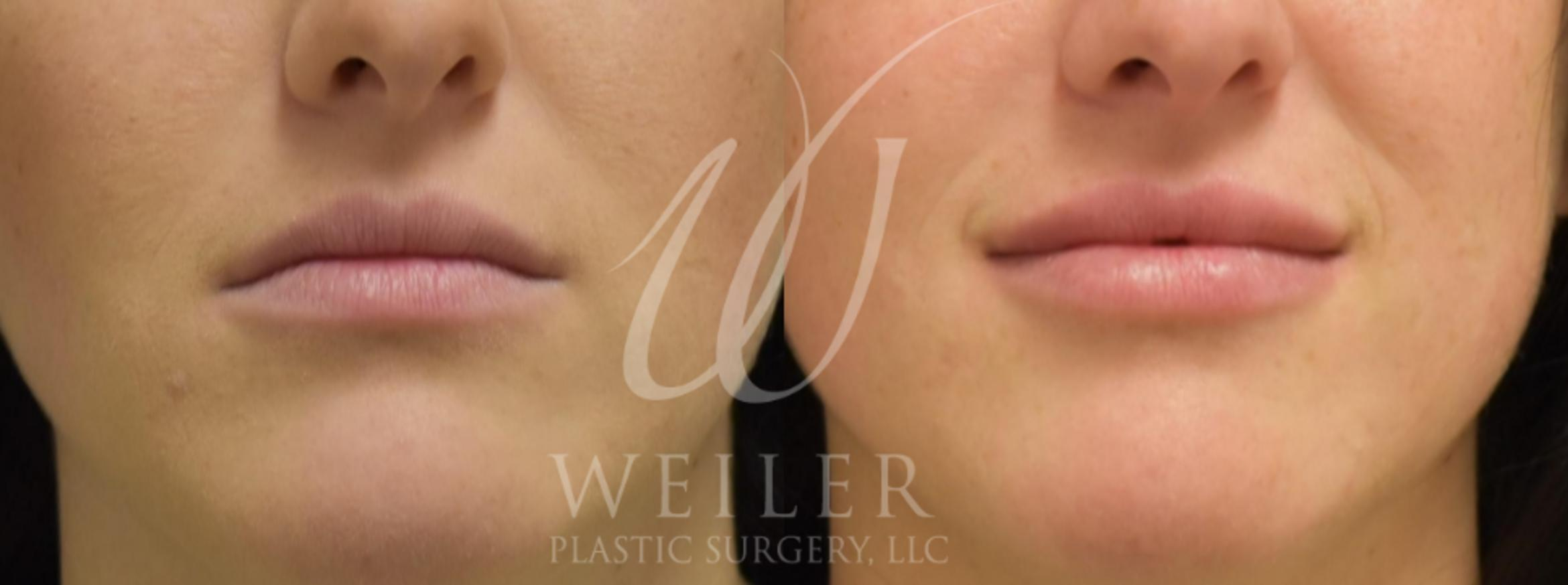 Lip Augmentation Before & After Photo | Baton Rouge, Louisiana | Weiler Plastic Surgery