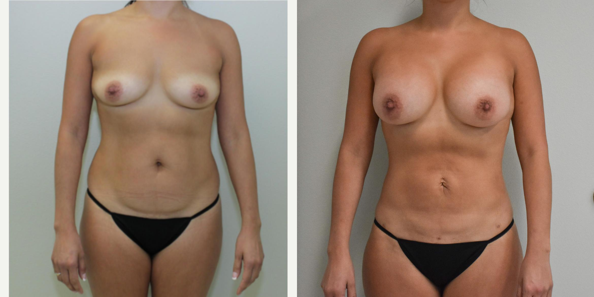 Liposuction Before After Photos Patient 256 Baton Rouge Louisiana Weiler Plastic Surgery