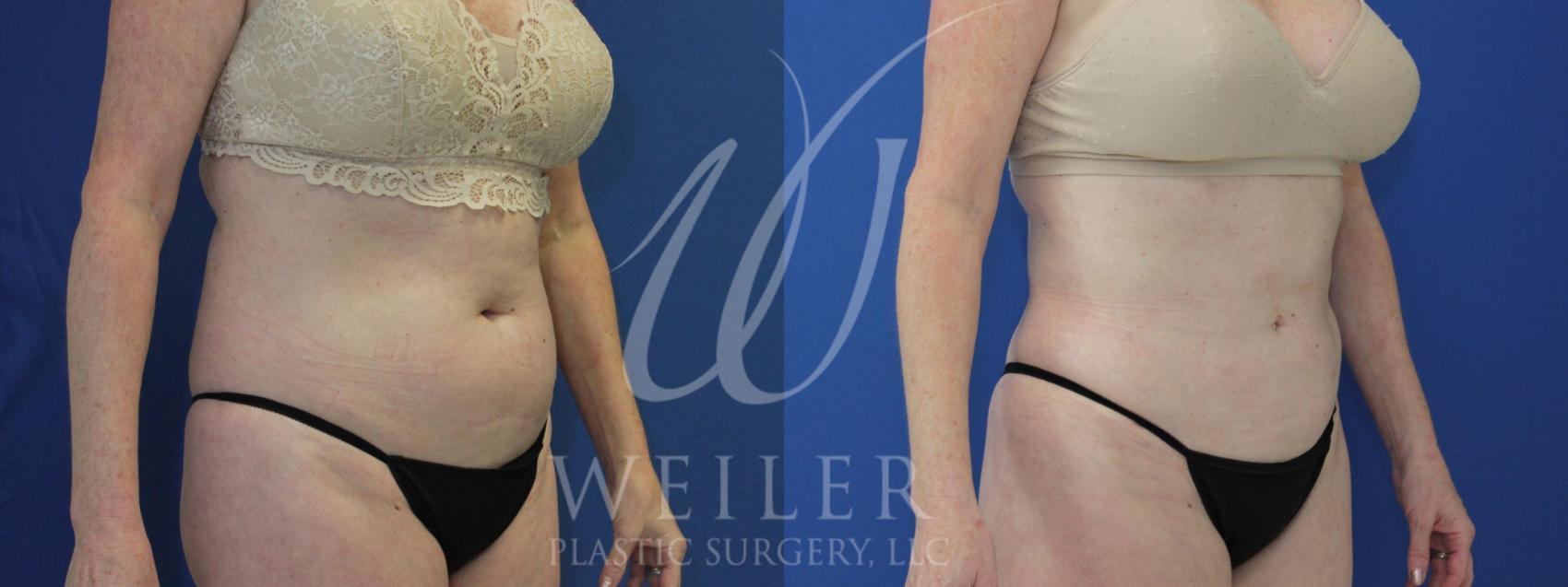 Liposuction Baton Rouge | Laser Lipo Hammond | Liposuction