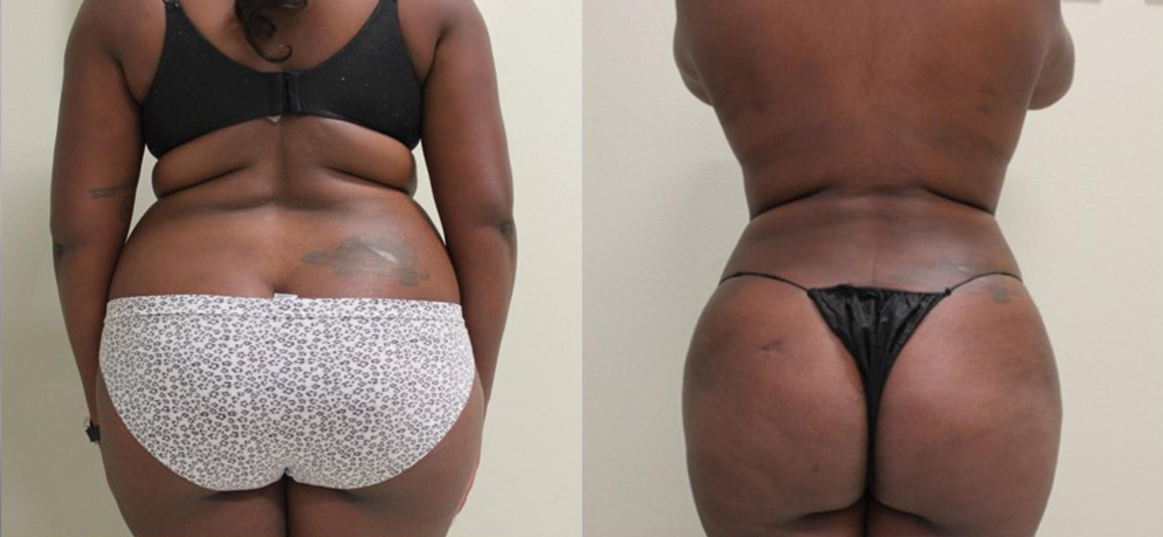 Liposuction Baton Rouge Laser Lipo Hammond Liposuction Surgery La Weiler Plastic Surgery