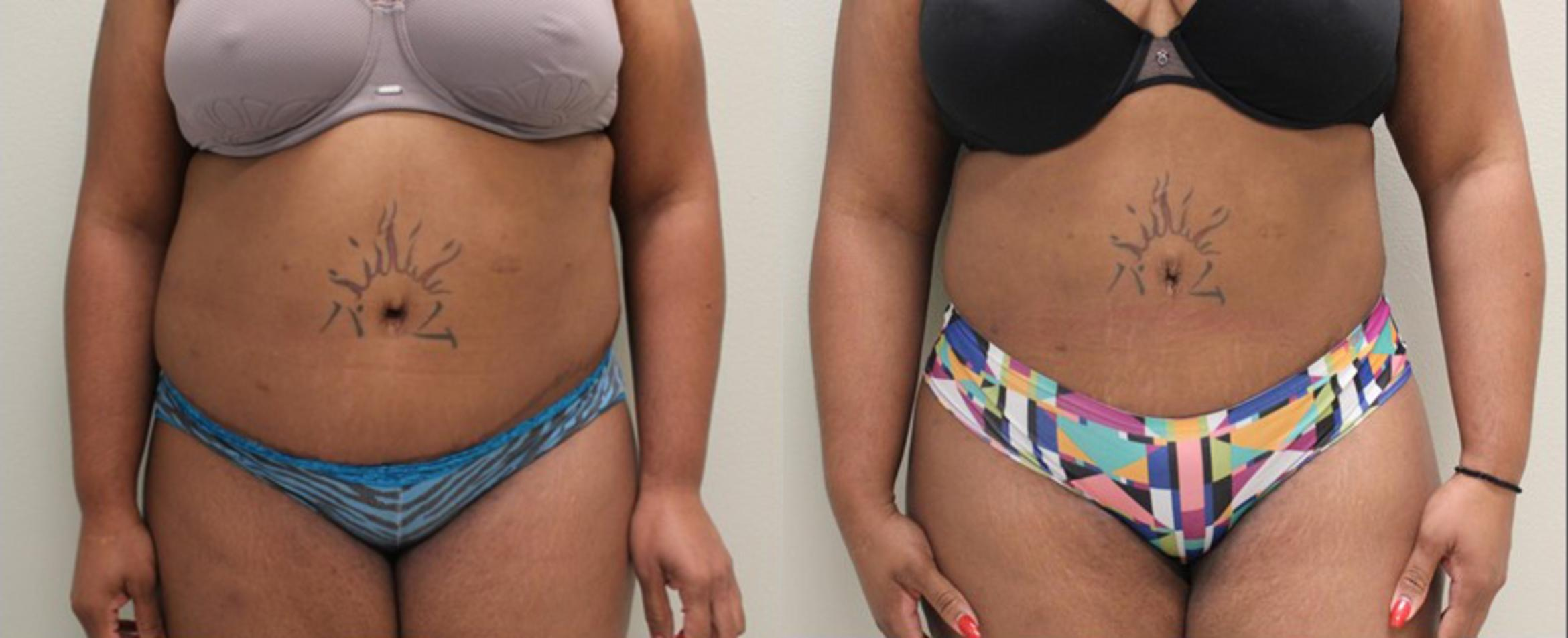 Liposuction Before & After Photo | Baton Rouge, Louisiana | Weiler Plastic Surgery