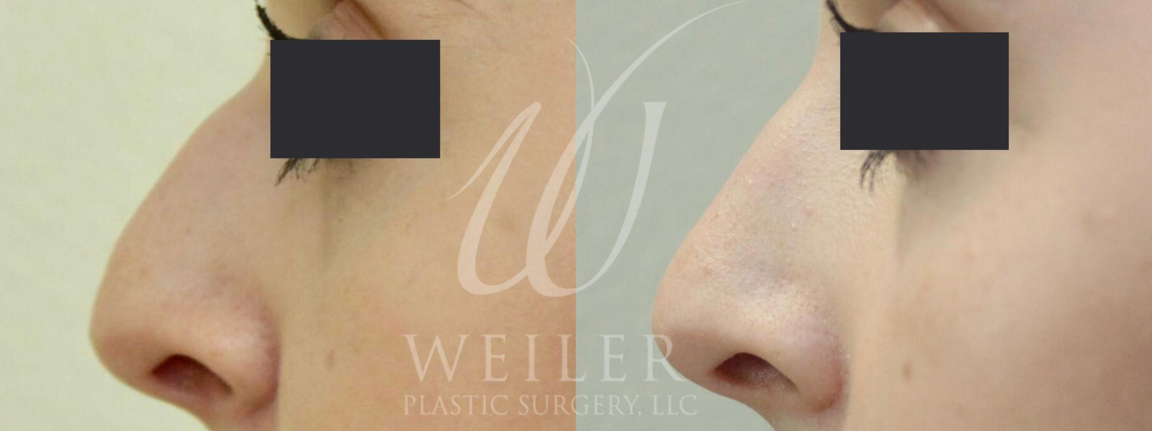 Liquid Rhinoplasty Before & After Photo | Baton Rouge, Louisiana | Weiler Plastic Surgery