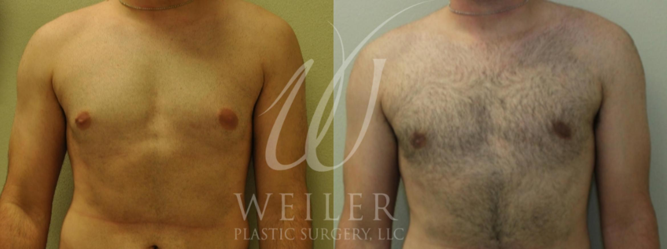 Male Breast Reduction Before & After Photo | Baton Rouge, Louisiana | Weiler Plastic Surgery