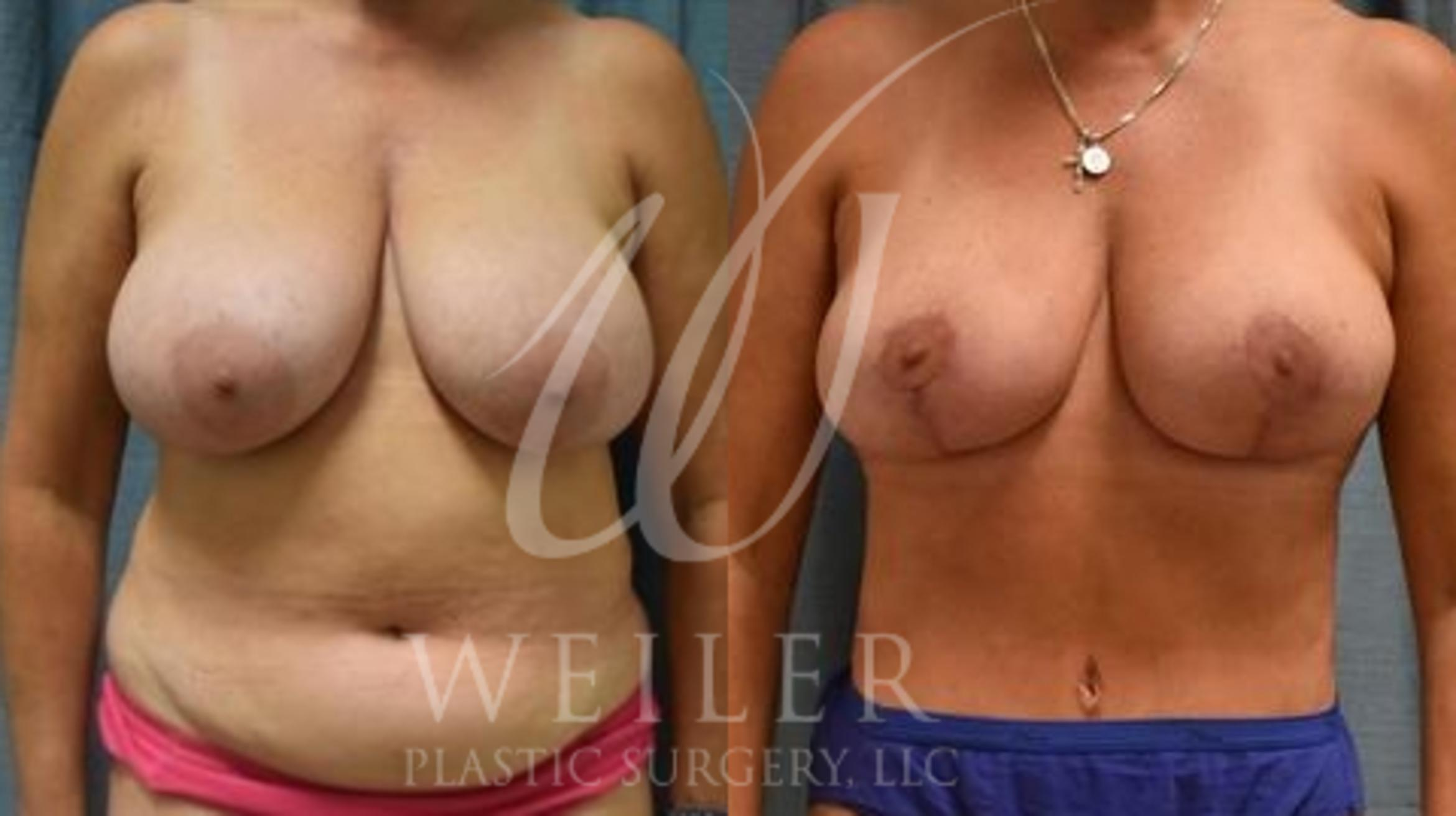 Mommy Makeover Before & After Photo | Baton Rouge, Louisiana | Weiler Plastic Surgery