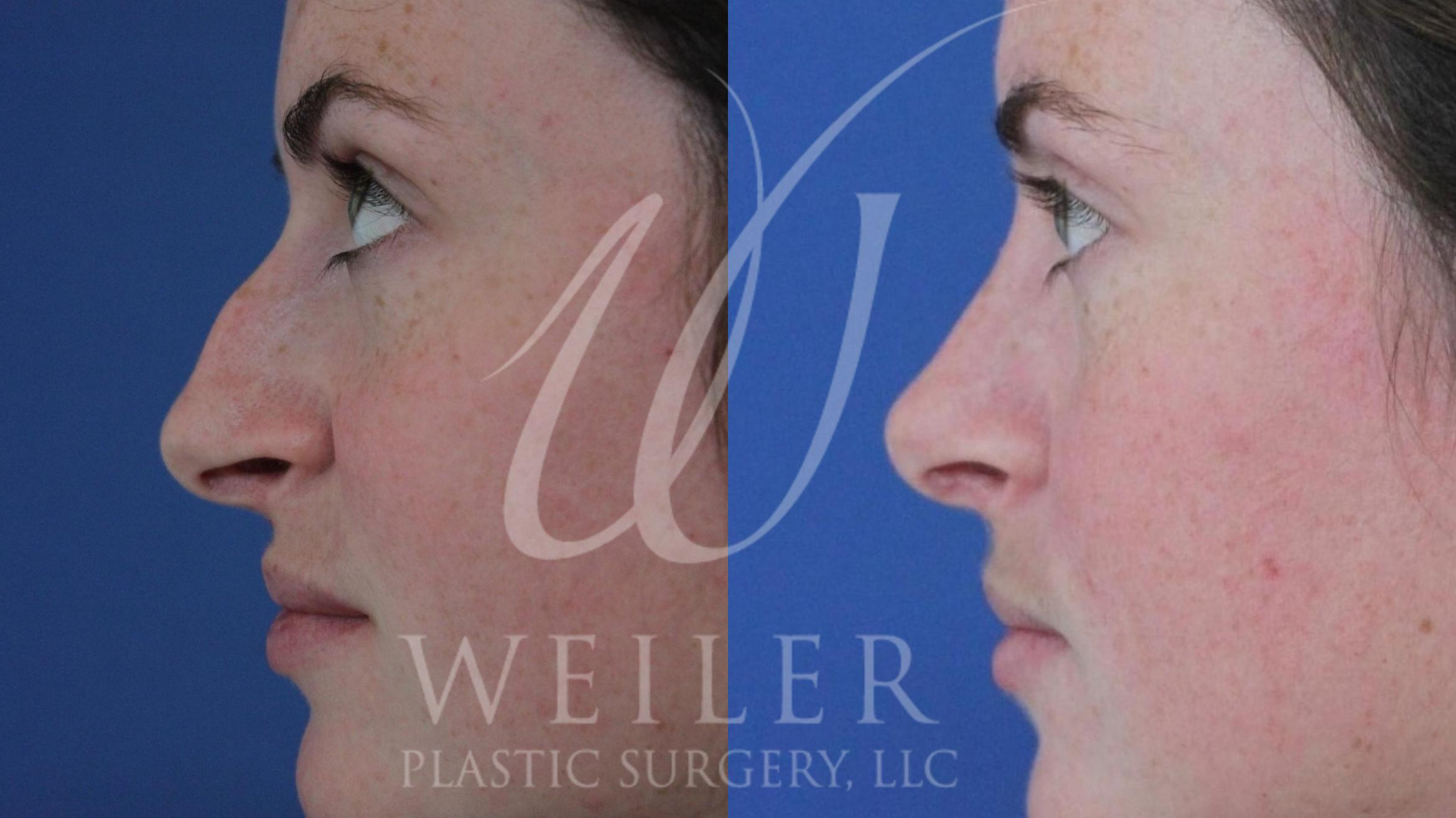 Rhinoplasty Before & After Photo | Baton Rouge, Louisiana | Weiler Plastic Surgery