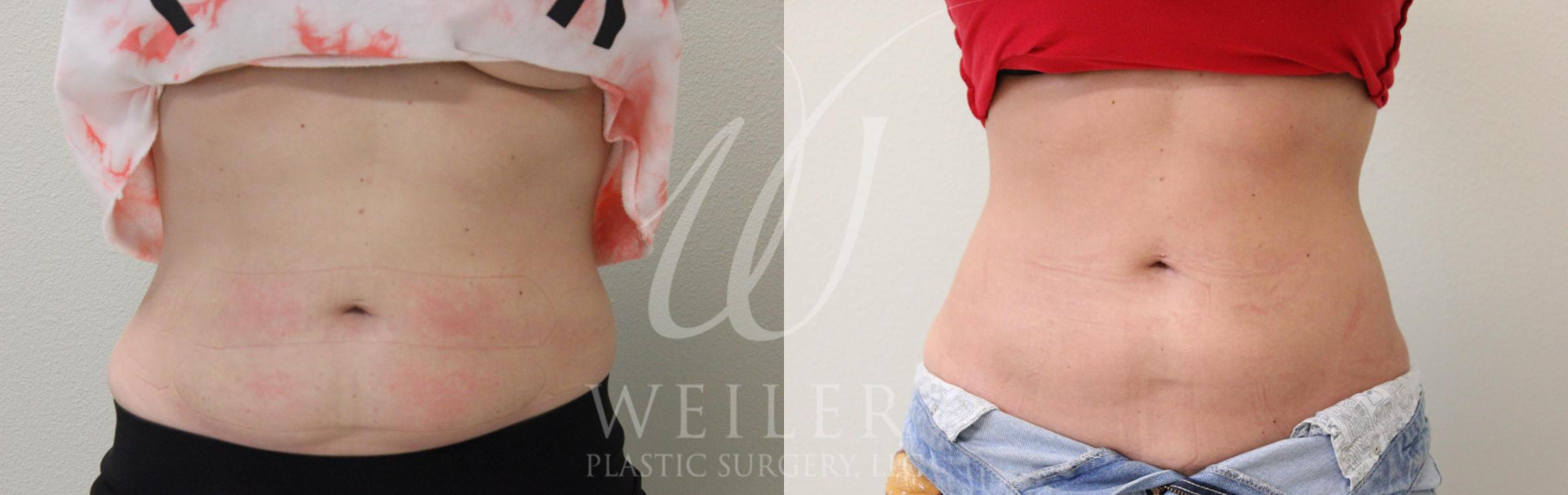 SculpSure® Before & After Photo | Baton Rouge, Louisiana | Weiler Plastic Surgery