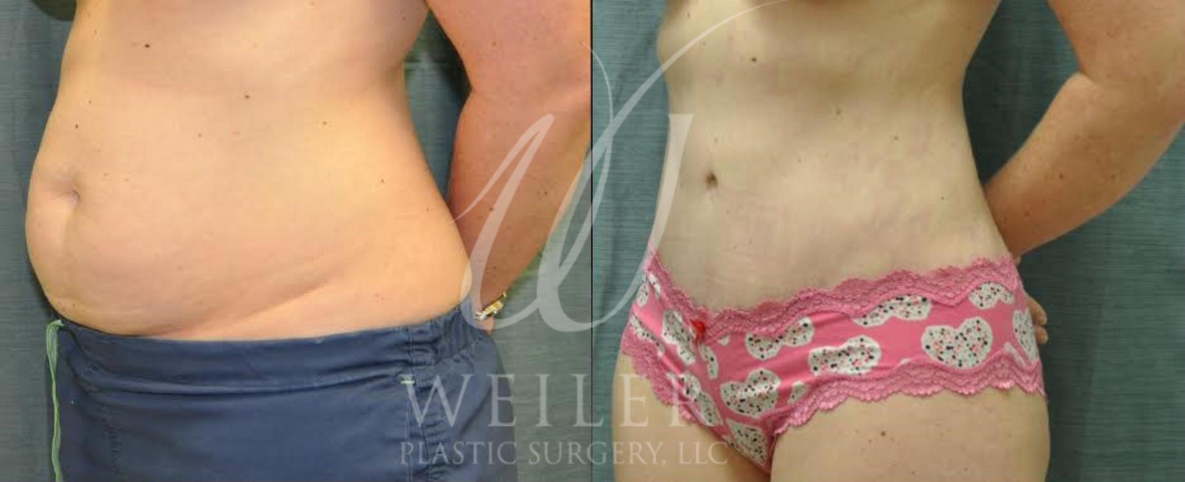 Tummy Tuck Before & After Photo | Baton Rouge, Louisiana | Weiler Plastic Surgery